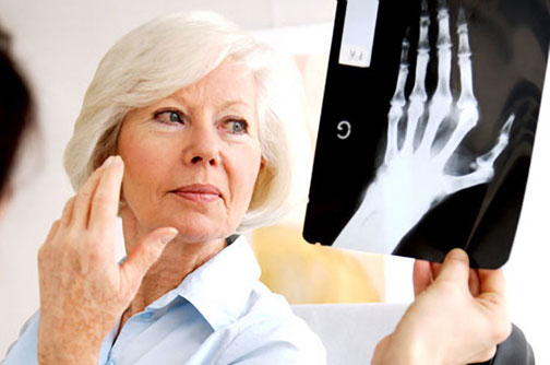 lady undergoing arthritis treatment