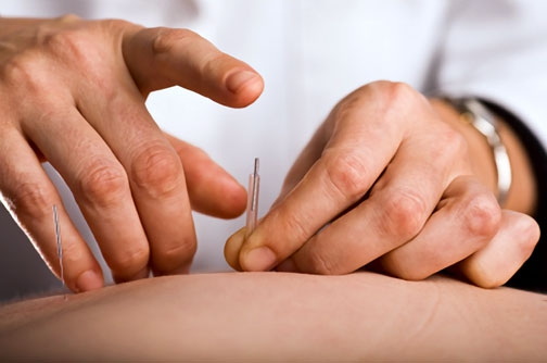 Acupuncture Treatments